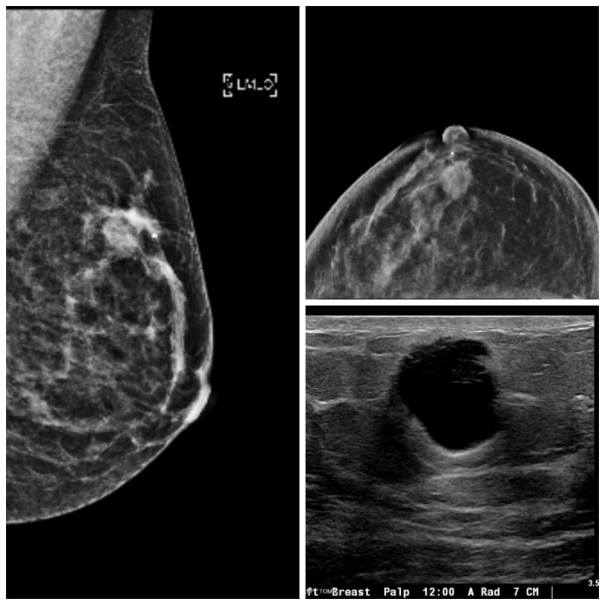 Scans Showing Breast Cancer