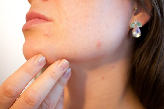 Pimples may be signs you're not as healthy as you think