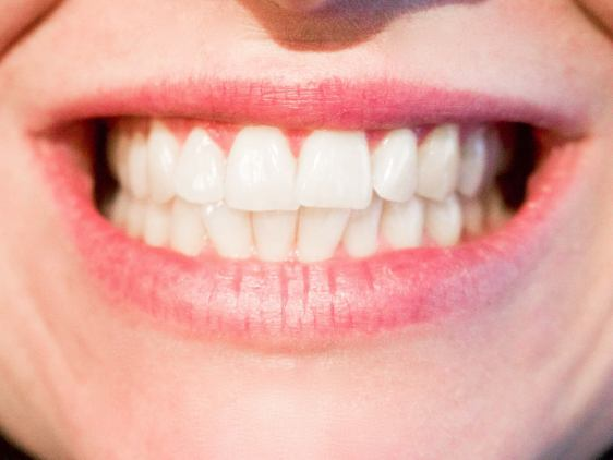 Imperfections on teeth can be worrisome