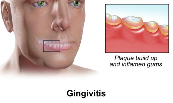 Look at your gums for infections