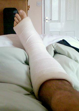 A broken leg may mean time off work